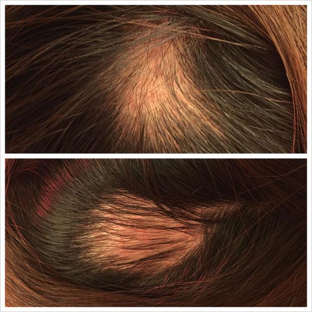 円形脱毛症の治療 経過3