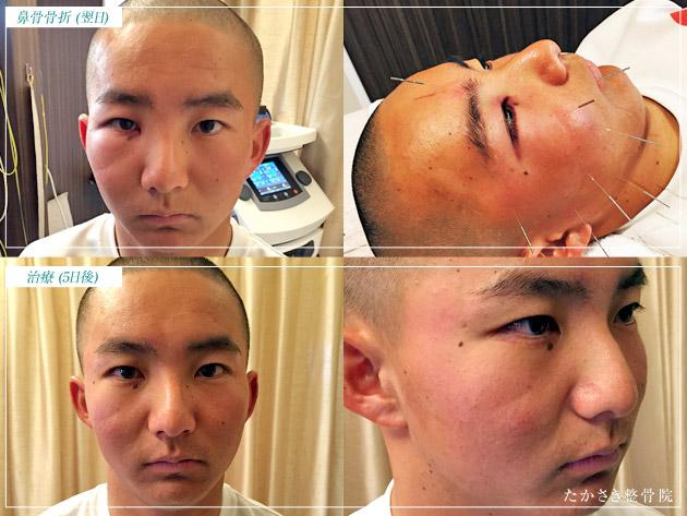 鼻骨骨折の治療経過写真