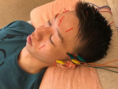 眼精疲労解消コース 男性の施術