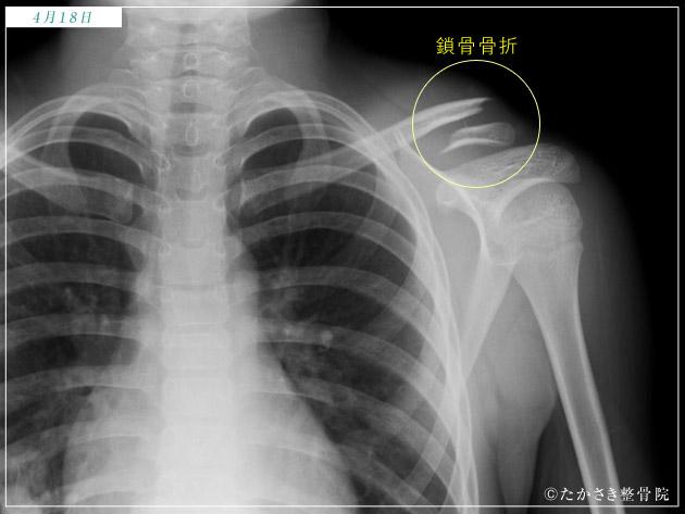鎖骨骨折 初日のレントゲン写真